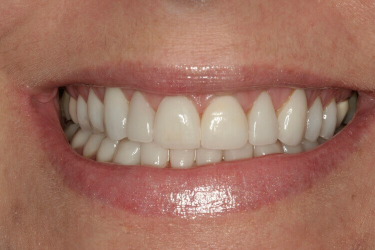 Before & After Veneers After