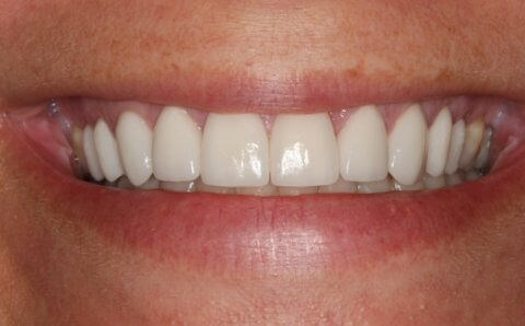 Veneer Success Story in NYC After