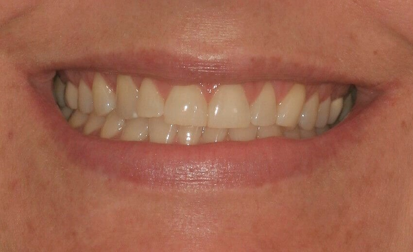 Before & After Veneers Before