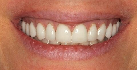 Veneers Before and After After