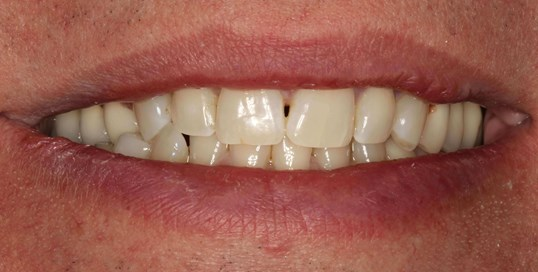 Veneers at SmilesNY in NYC Before