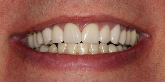 Veneers at SmilesNY in NYC After