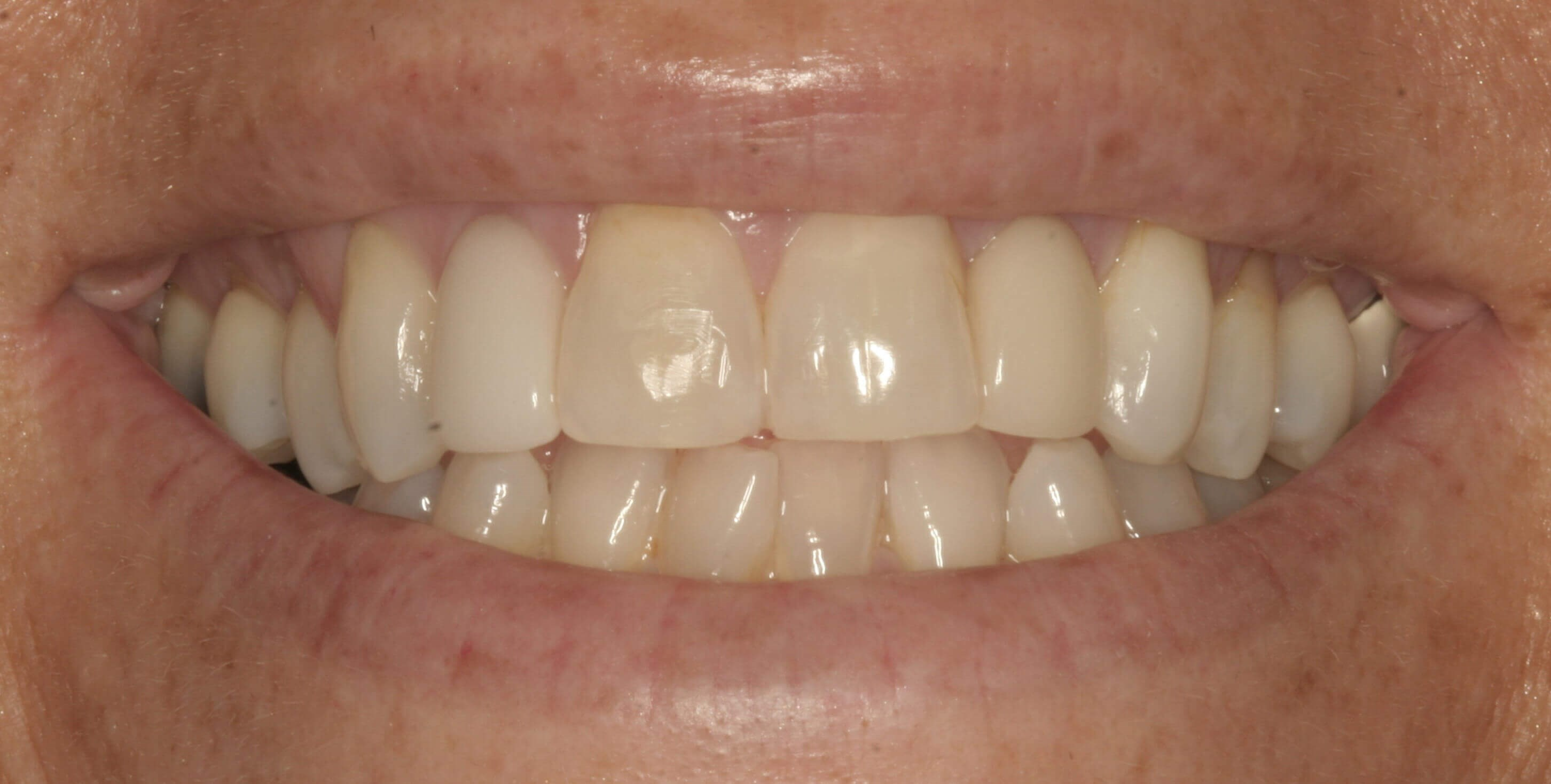 Porcelain Veneer Results Before