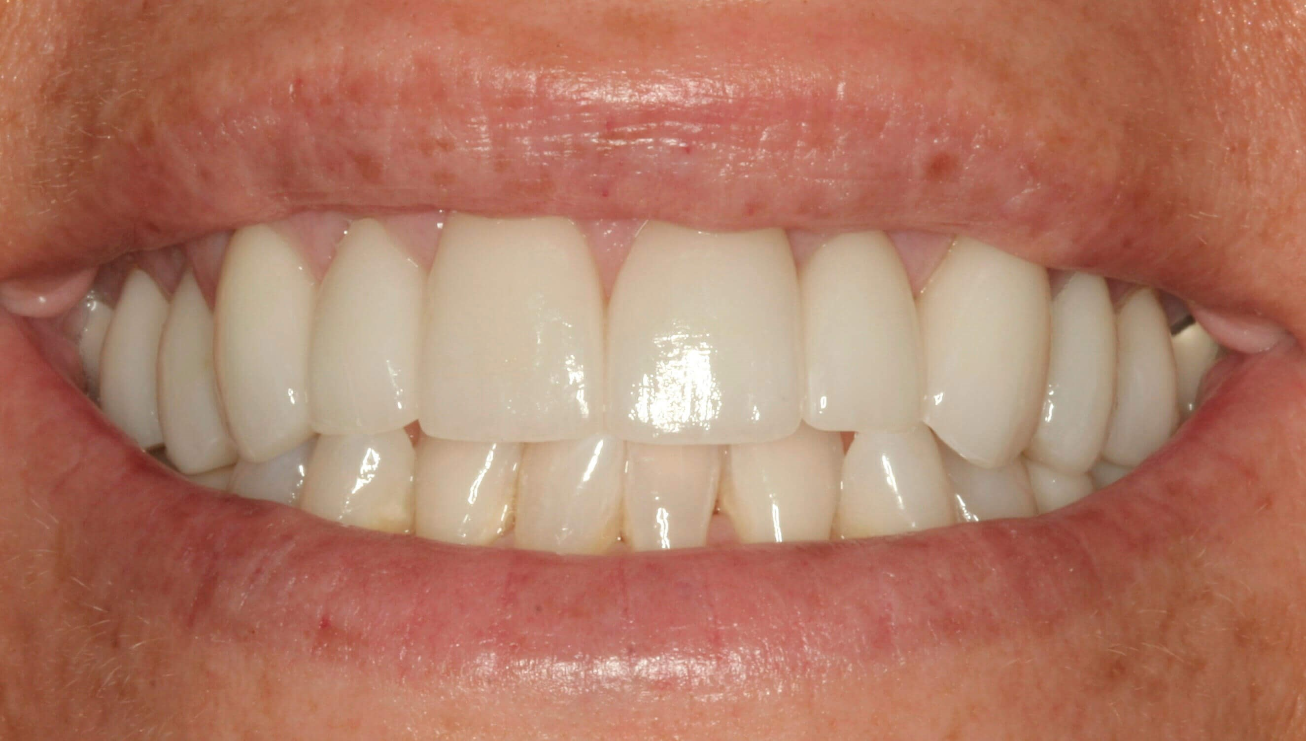 Porcelain Veneer Results After