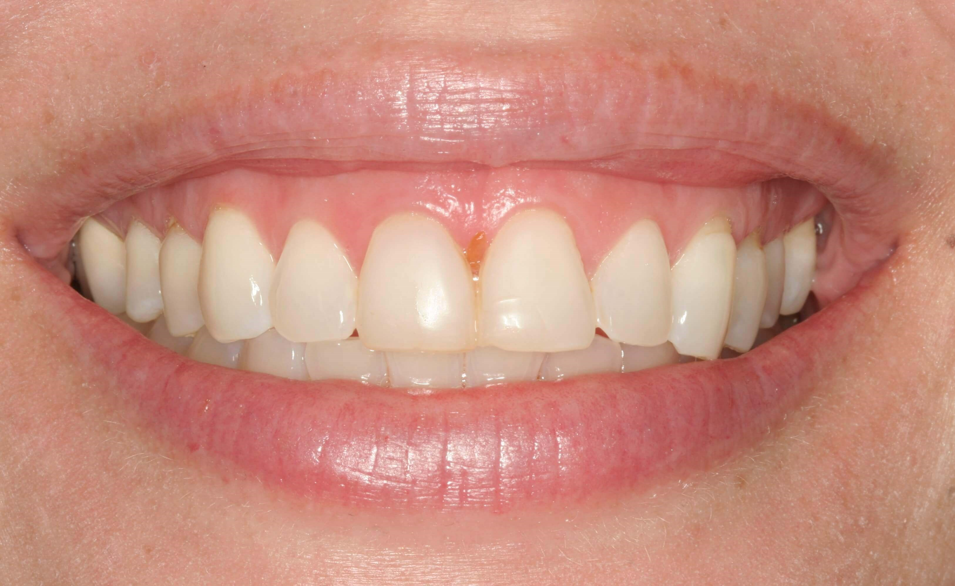 Veneers Before and After Before