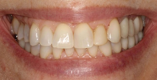 Smile Makeover Before & After Before