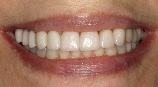 Smile Makeover Before & After After