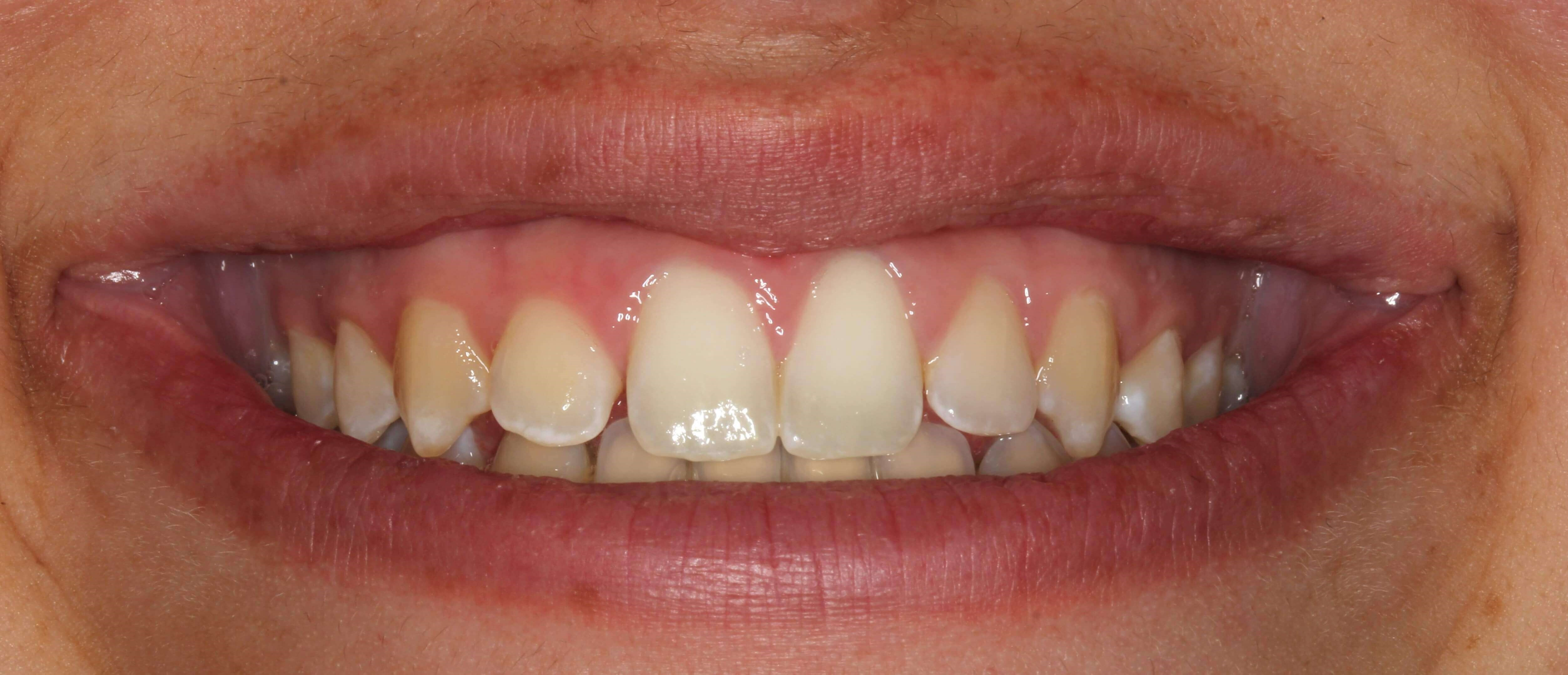 Crown Lengthening & Veneers Before