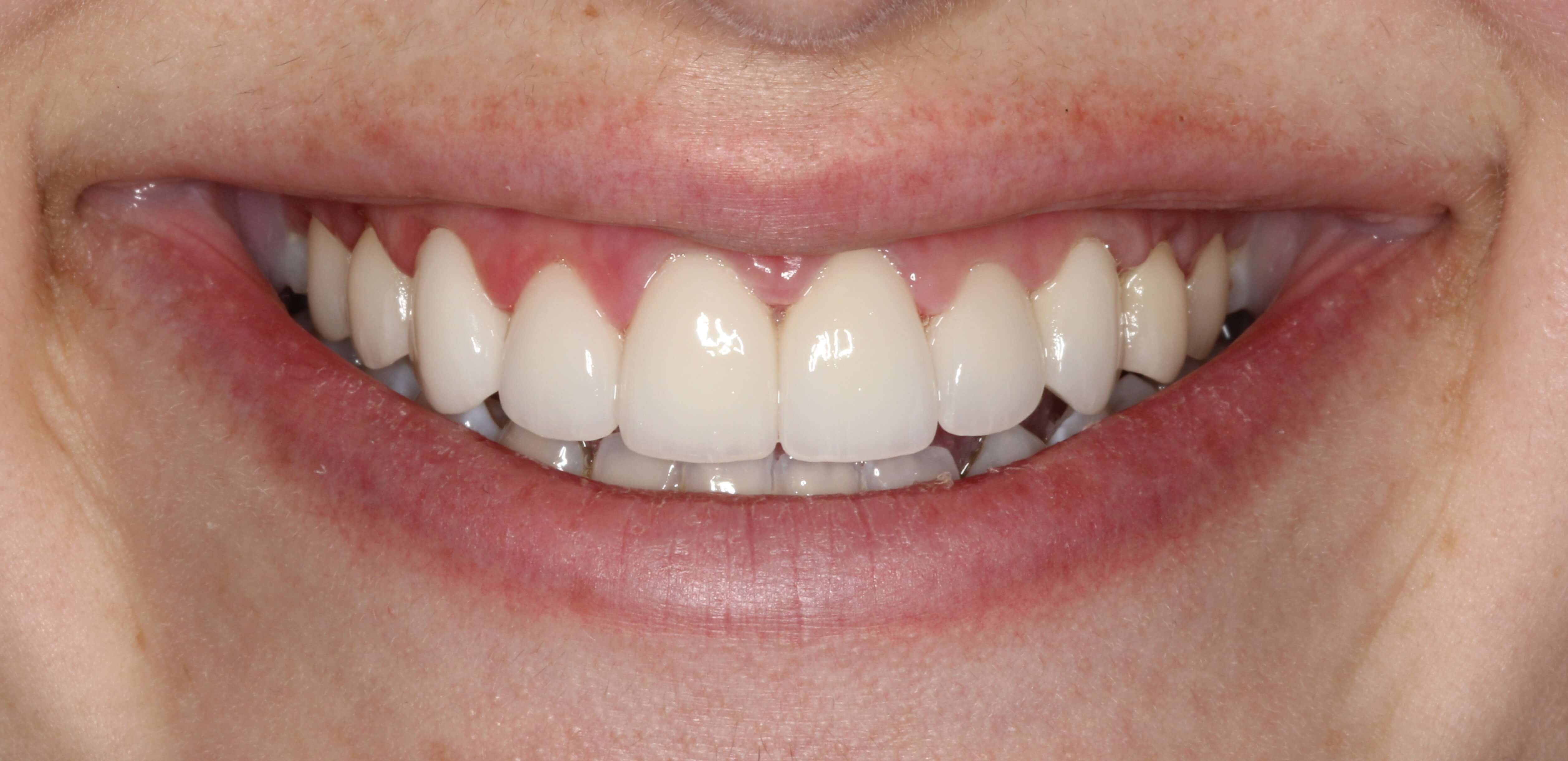 Crown Lengthening & Veneers After