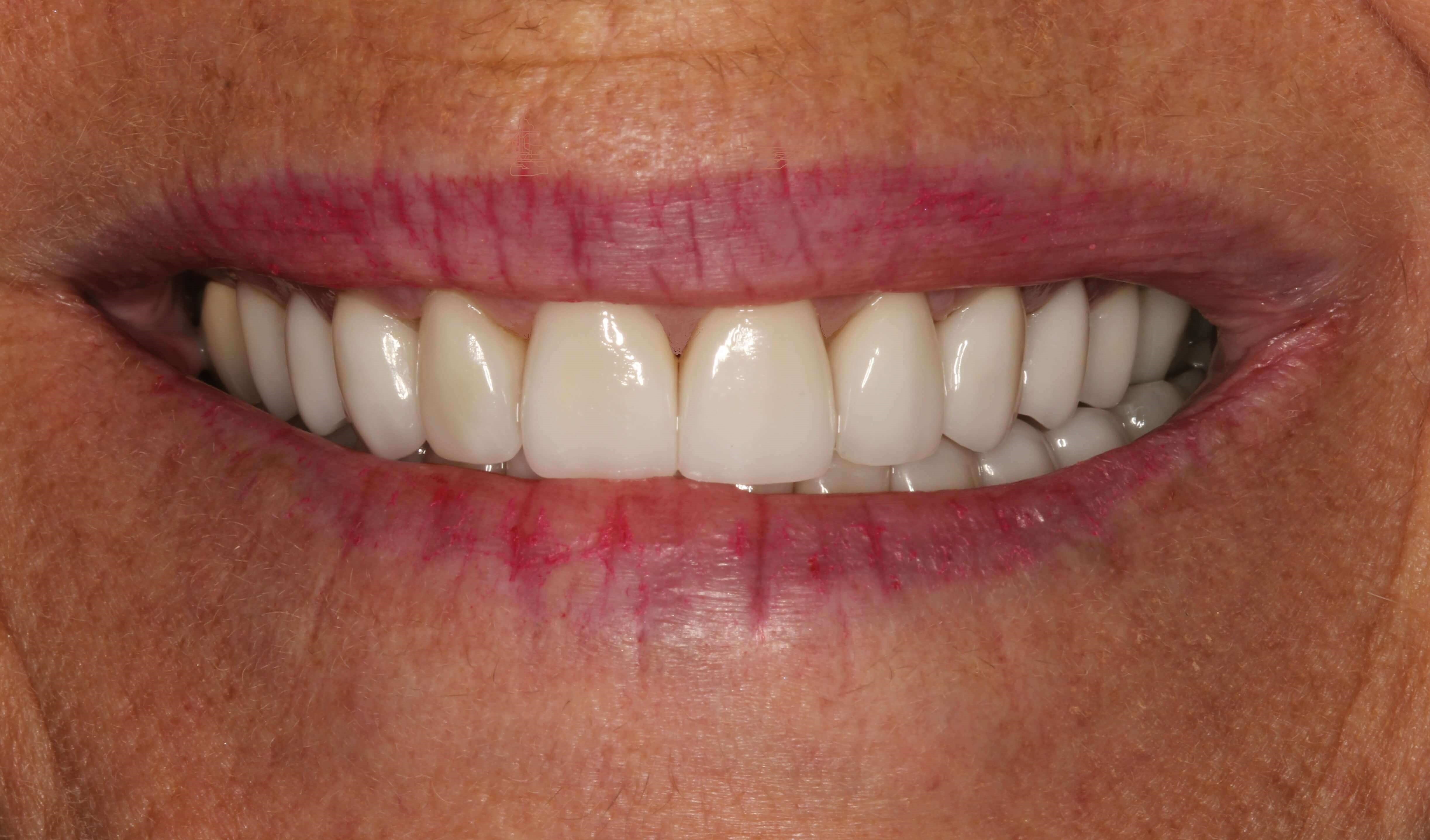 Beautiful Smile Makeover After