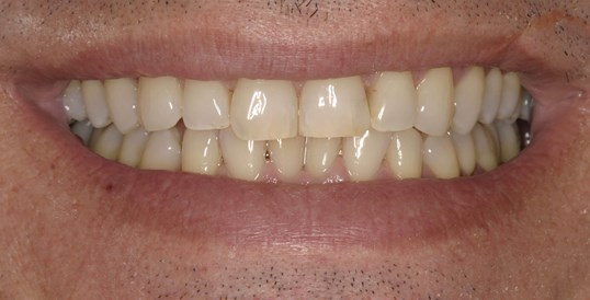 Porcelain Crown Smile Makeover Before
