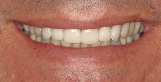 Porcelain Crown Smile Makeover After