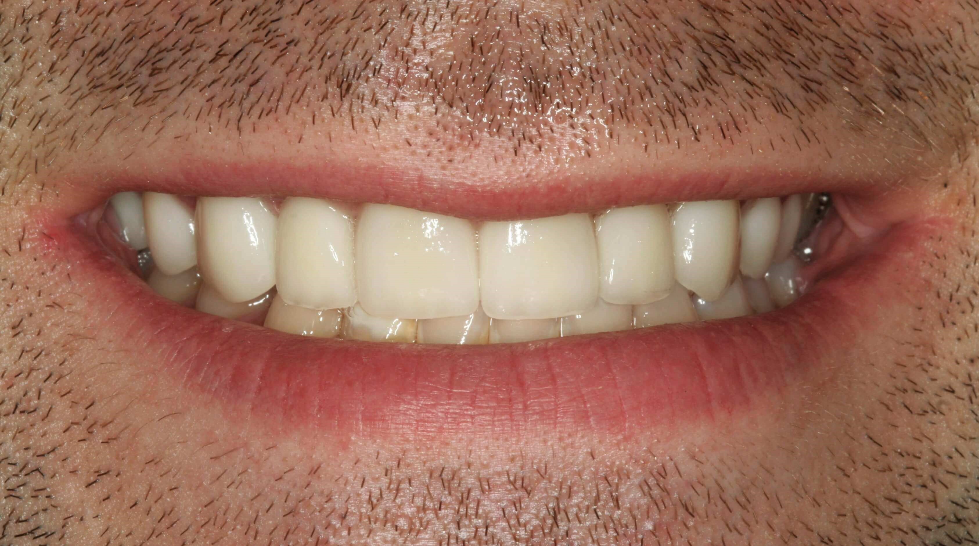 Porcelain Veneers at SmilesNY After