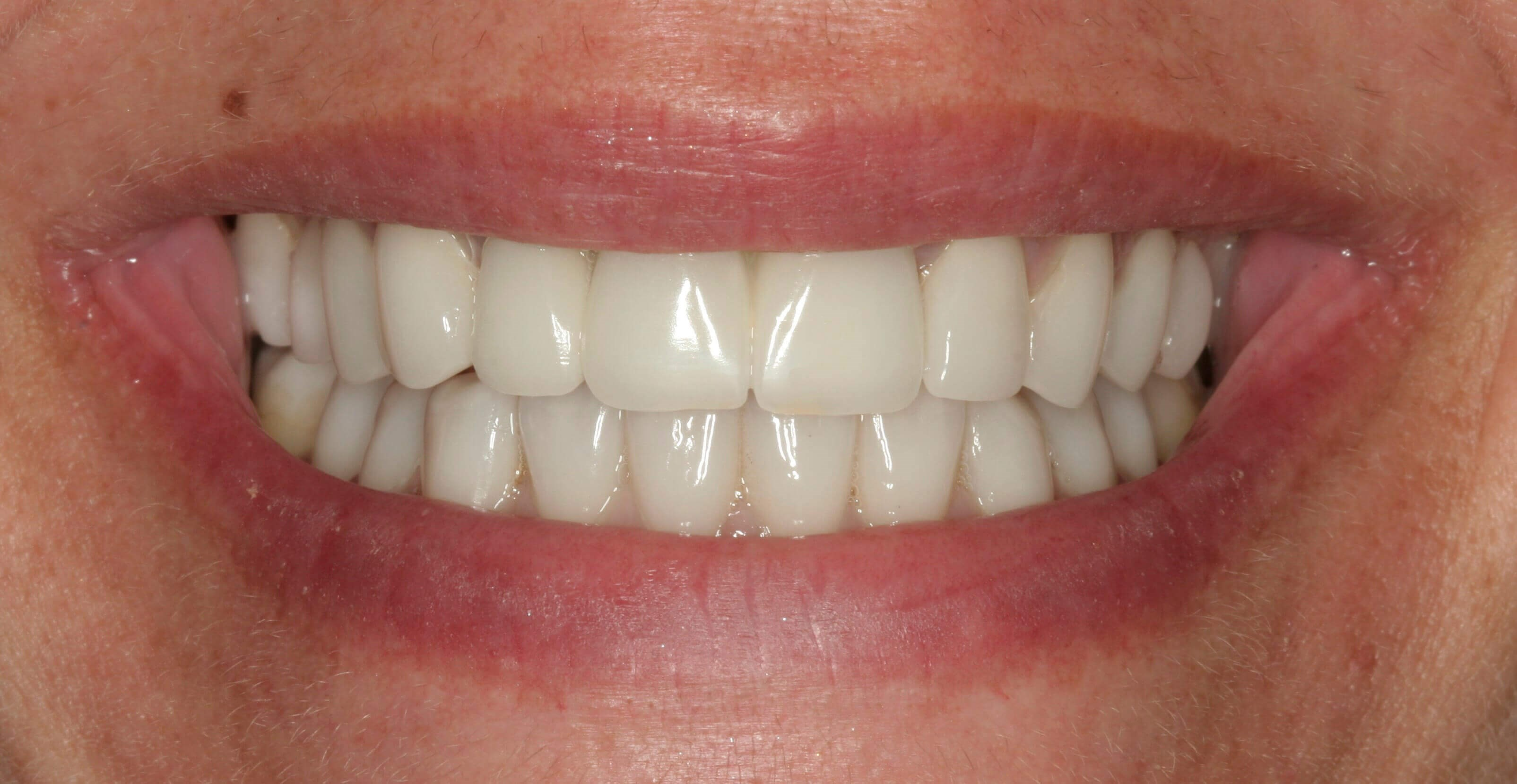 Porcelain Veneers & Crowns NYC After