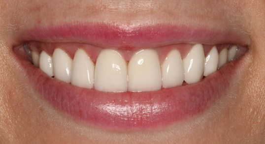 Veneers Before and After NYC After
