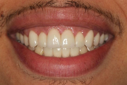 Veneers Before & After After