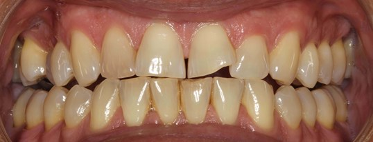 Porcelain Crowns & Veneers NYC Before