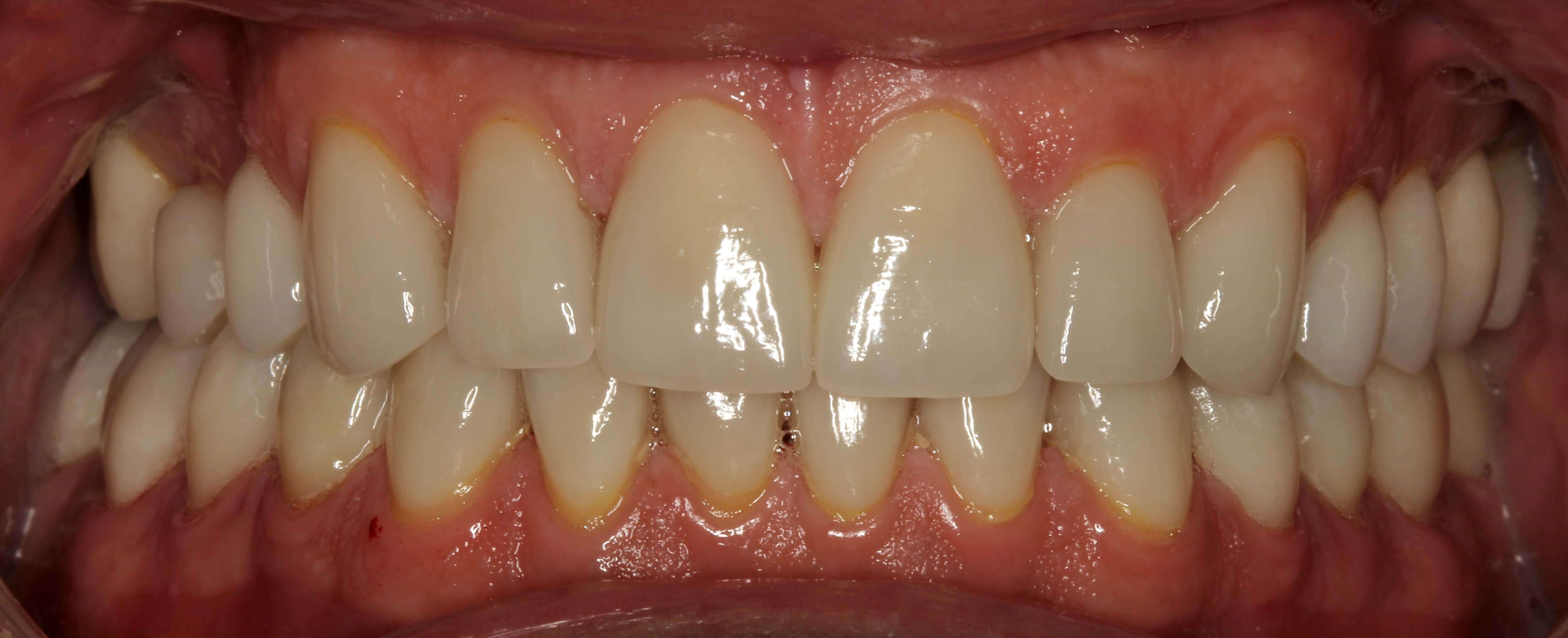 Porcelain Crowns & Veneers NYC After