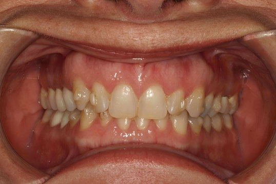 Full-Mouth Restoration NYC Before