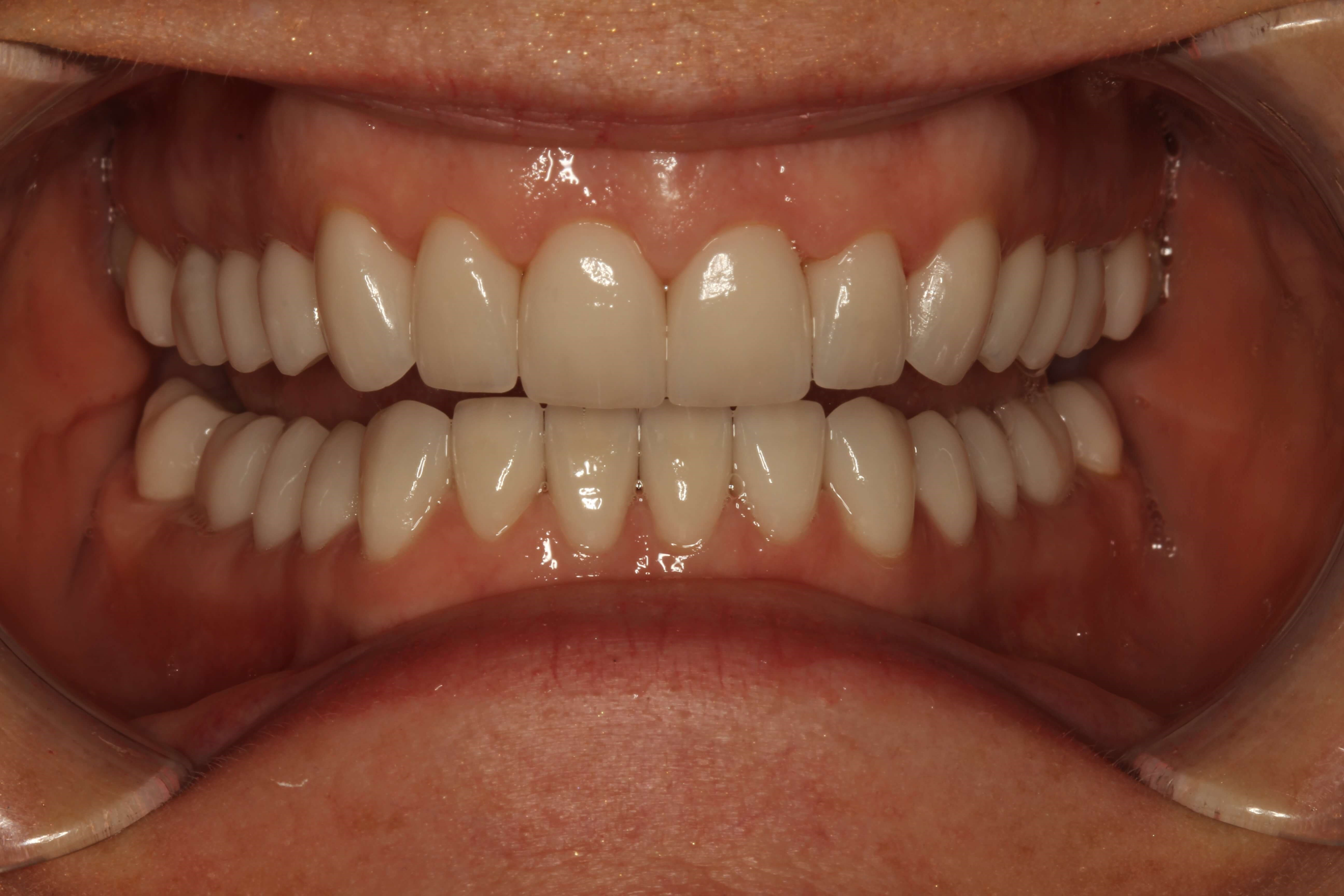 Full-Mouth Restoration NYC After