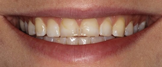 NYC Veneers Before & After Before