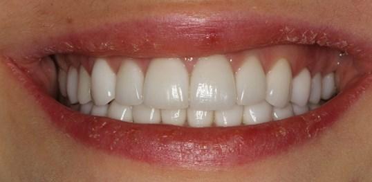 NYC Veneers Before & After After