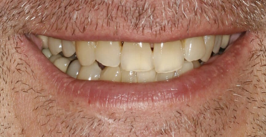 Porcelain Crowns and Veneers Before