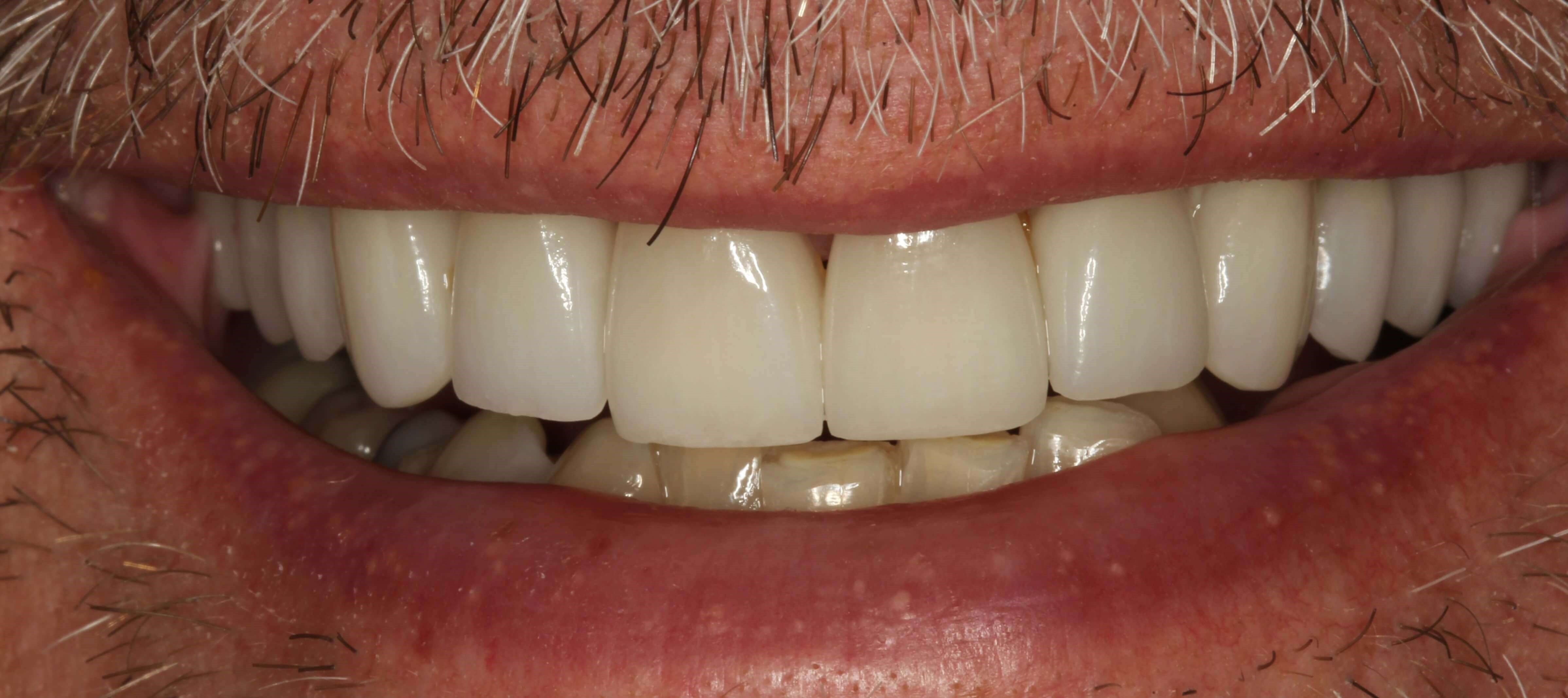 Porcelain Crowns and Veneers After