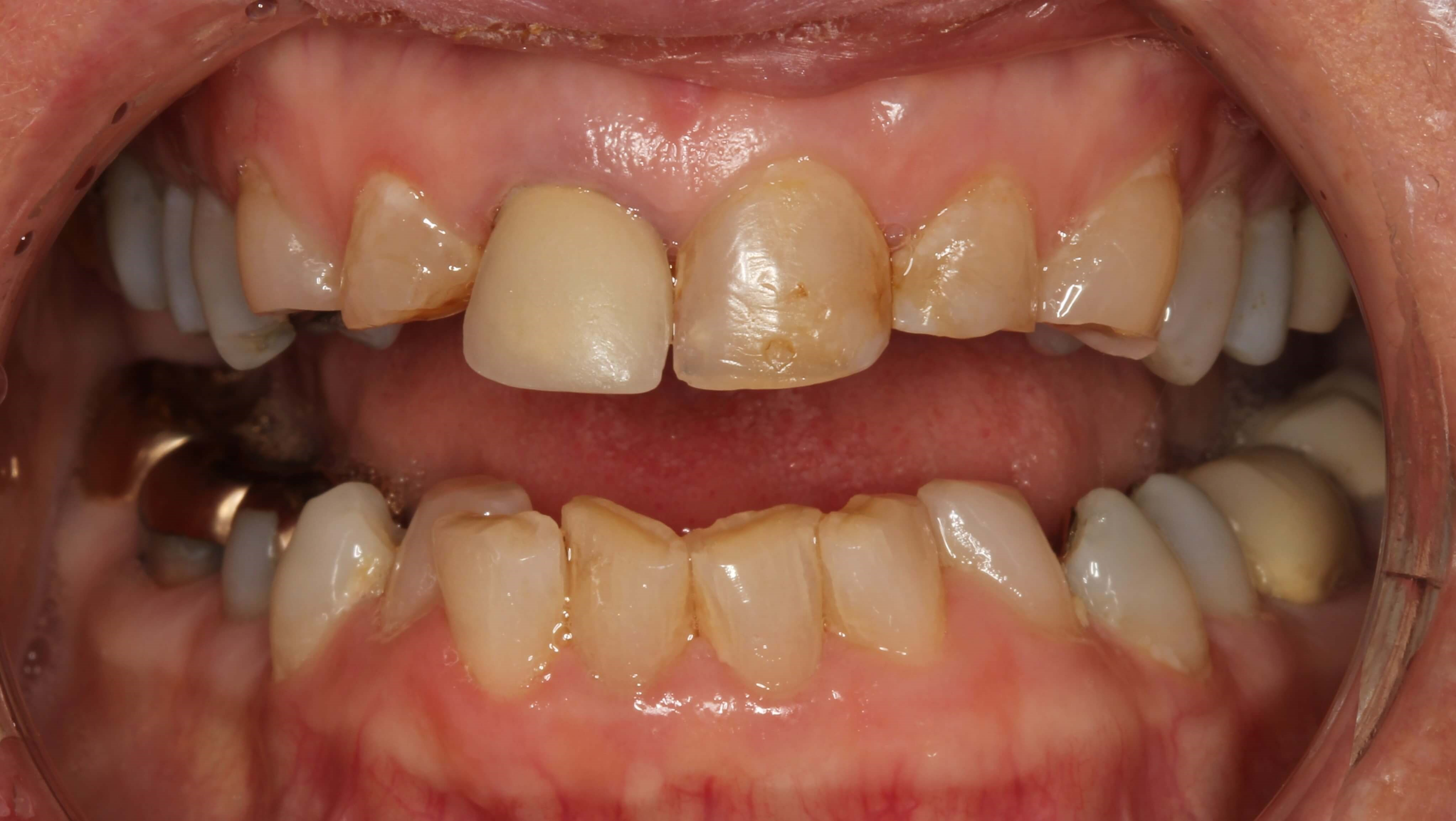 Porcelain Crowns at SmilesNY Before
