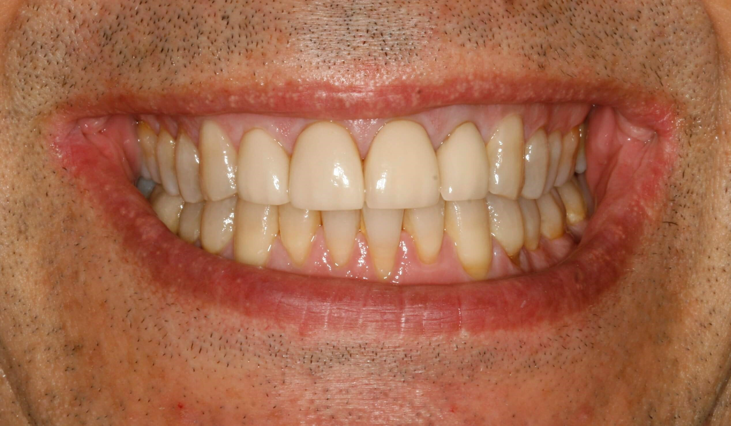 Veneers in New York City Before