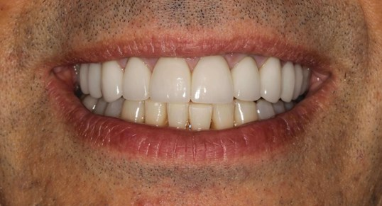 Veneers in New York City After