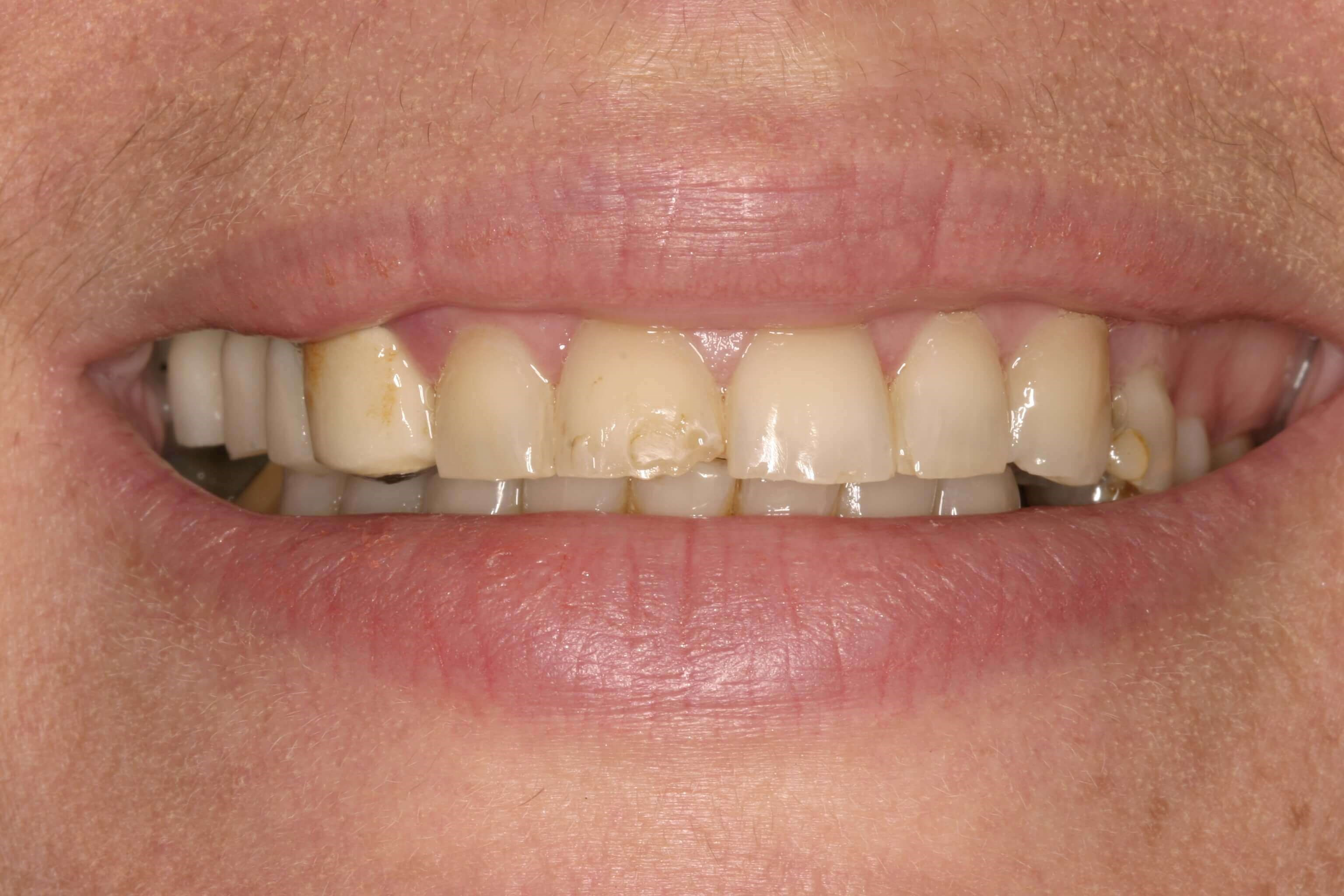 Beautiful Smile Makeover NYC Before