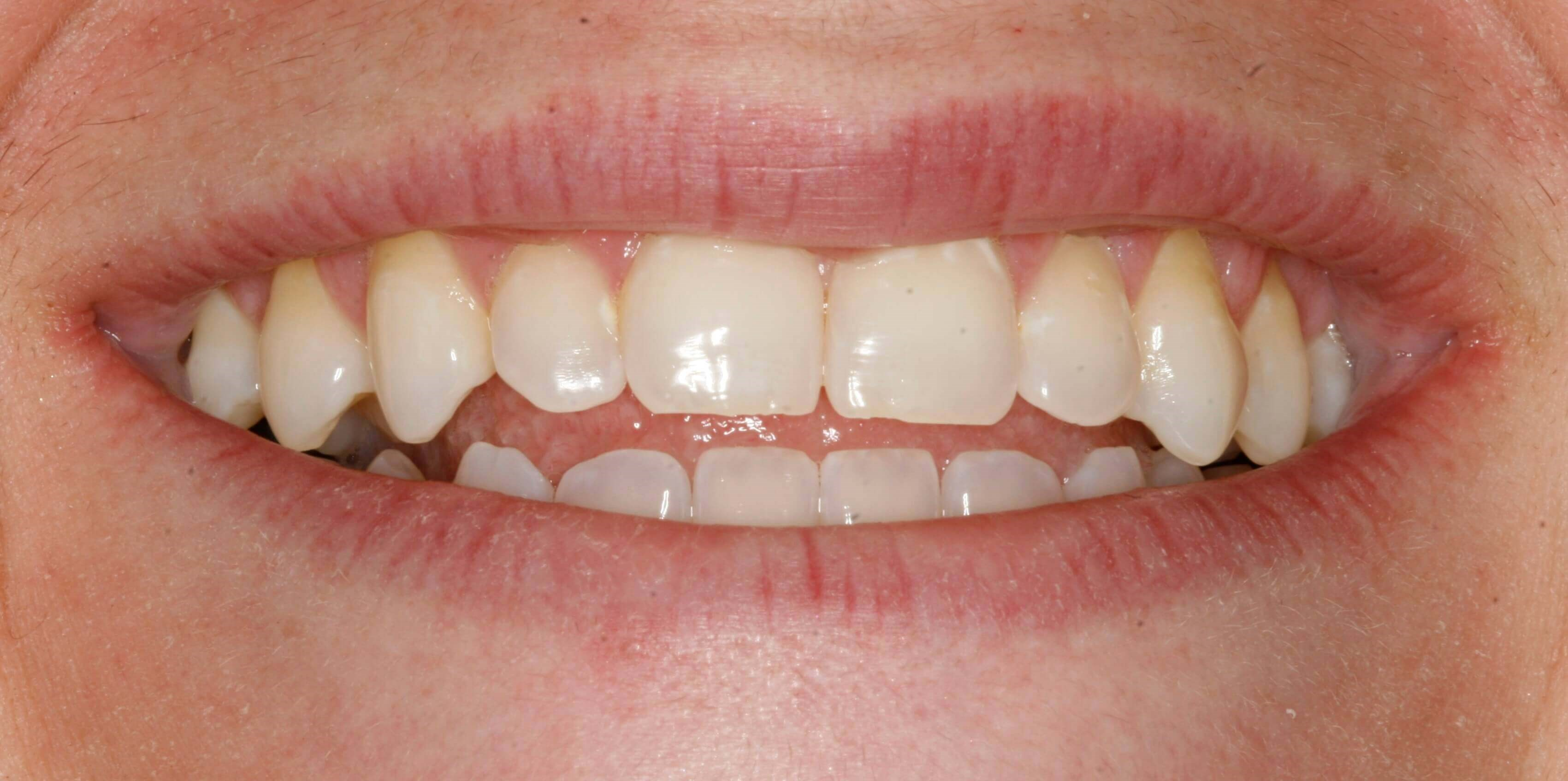 Beautiful Porcelain Veneers Before
