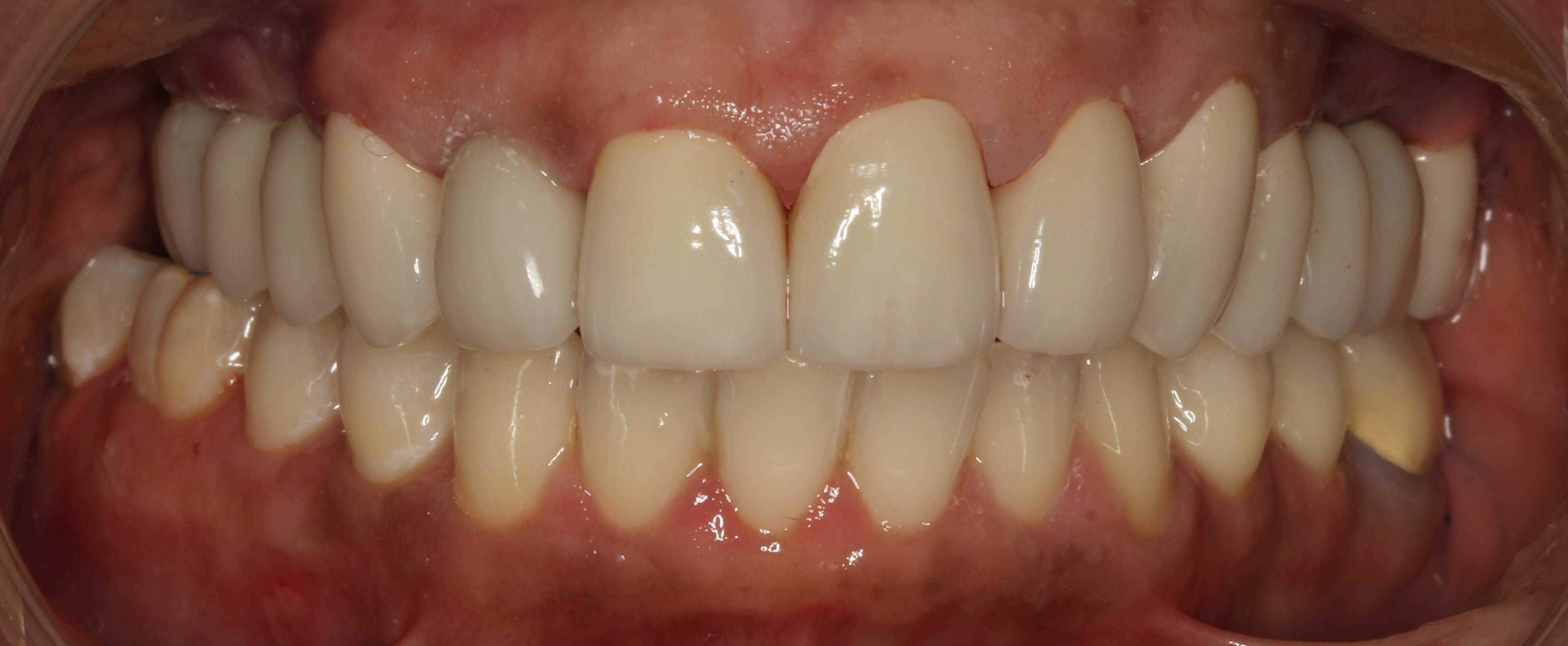 Smile Makeover SmilesNY After
