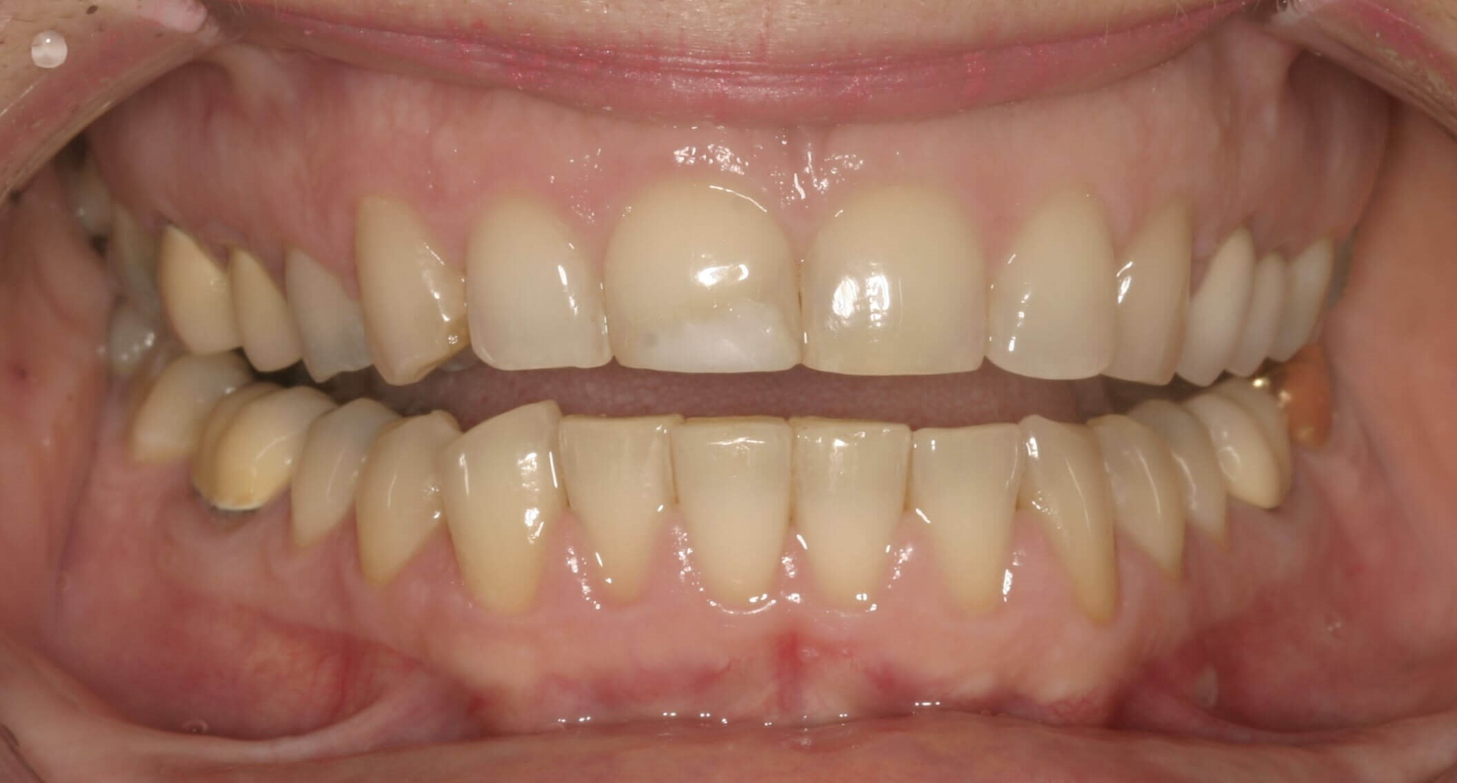 SmilesNY Porcelain Veneers Before