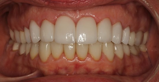 SmilesNY Porcelain Veneers After