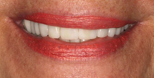 Beautiful Porcelain Crowns After