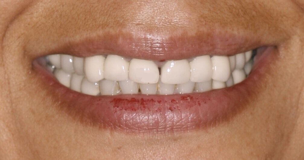 Porcelain Crowns NYC Before