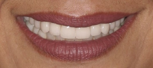 Porcelain Crowns NYC After
