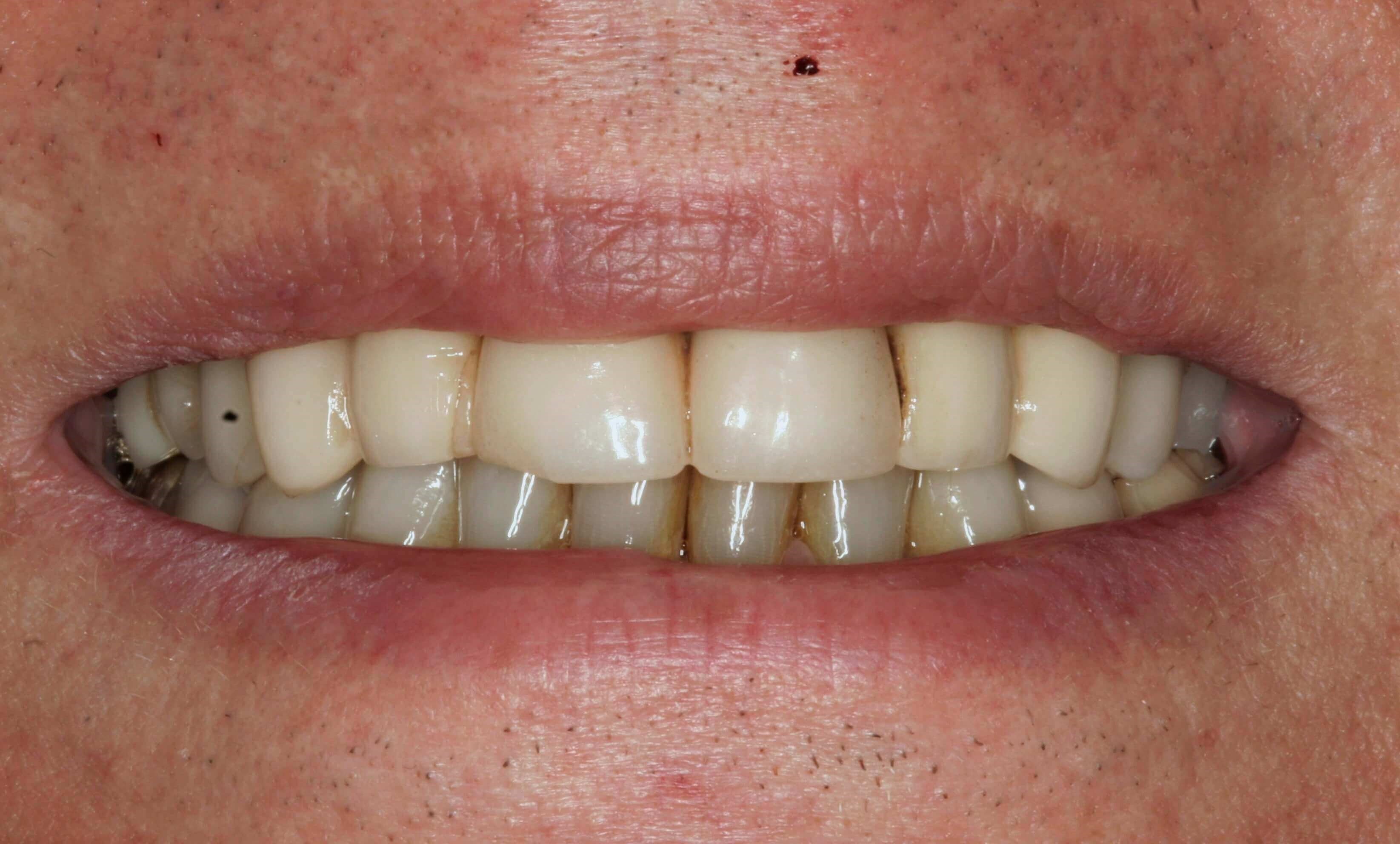 Smile Reconstruction NYC Before