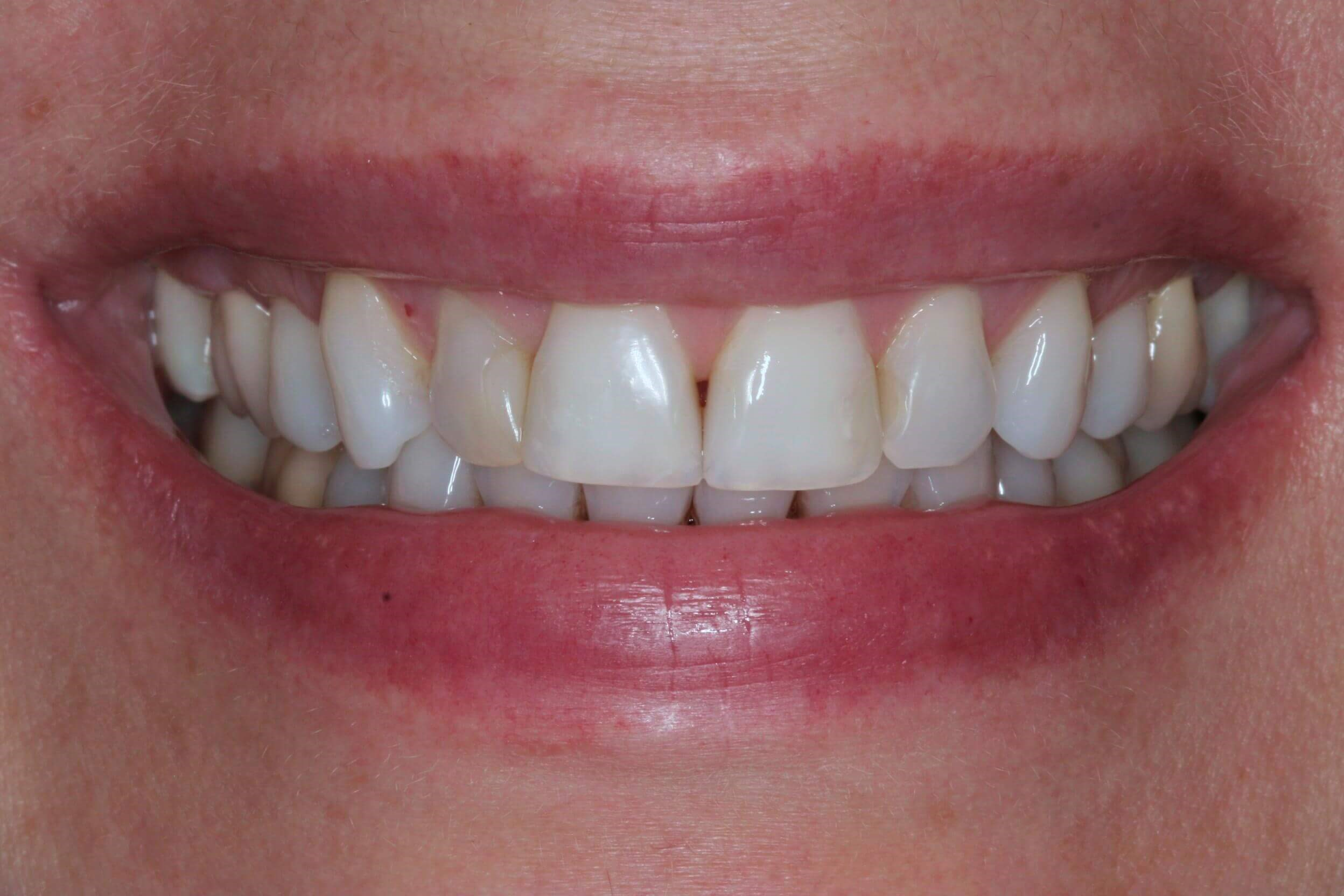 Porcelain Crown Restorations Before
