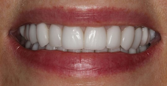 Porcelain Crown Restorations After