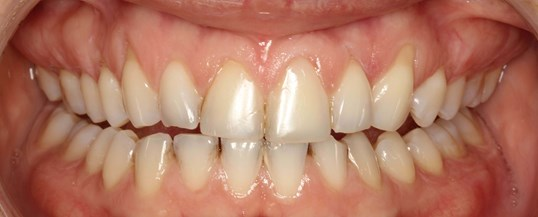 Beautiful Porcelain Veneers NY Before