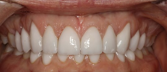 Beautiful Porcelain Veneers NY After