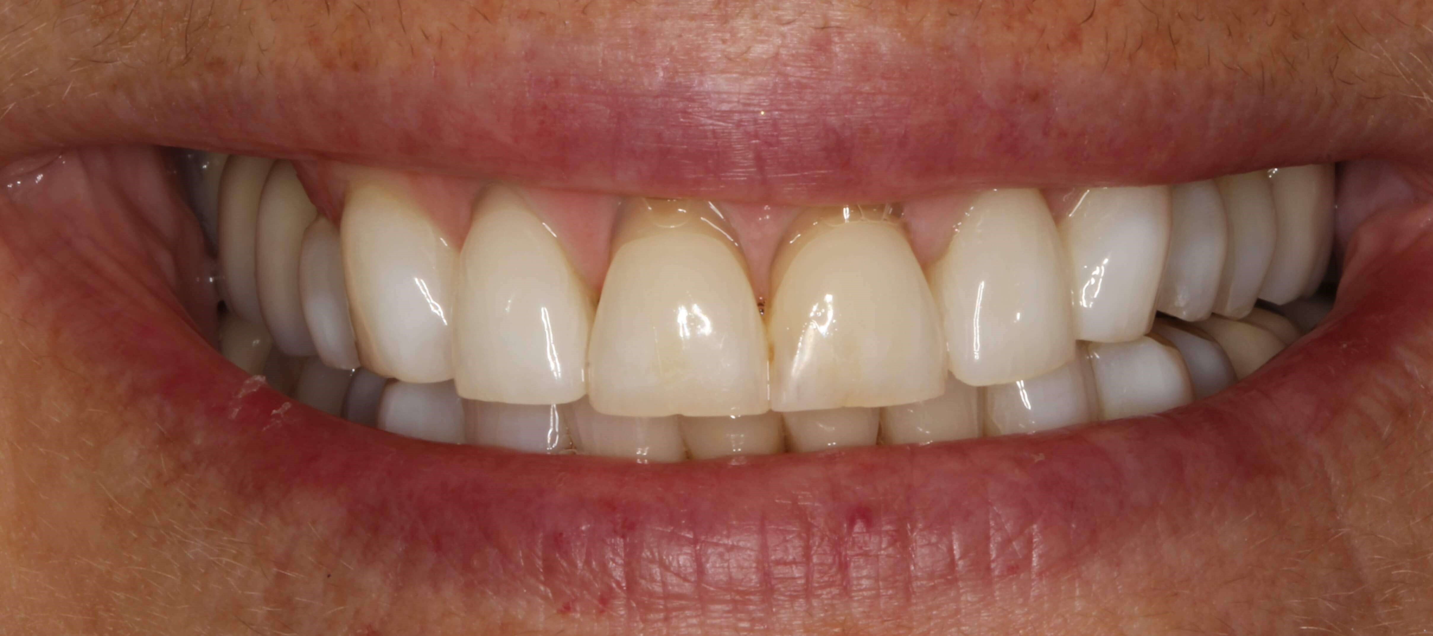 Full Mouth Veneers and Crowns Before