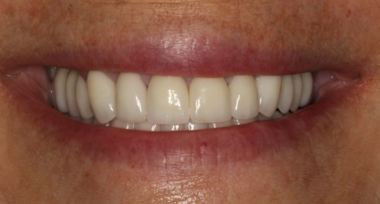 Full Mouth Veneers and Crowns After