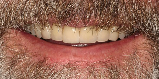 SmilesNY Veneer Case After