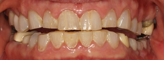 SmilesNY Full-mouth Makeover Before