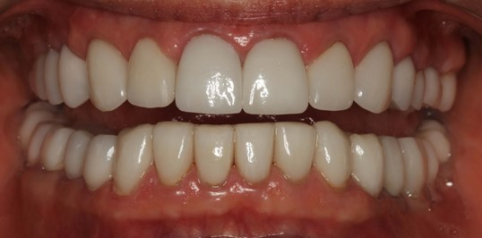SmilesNY Full-mouth Makeover After