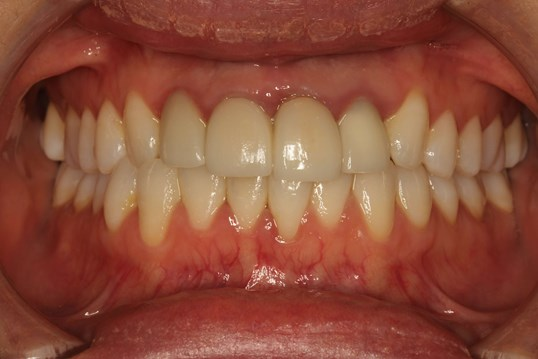 Successful Veneer Case in NYC Before